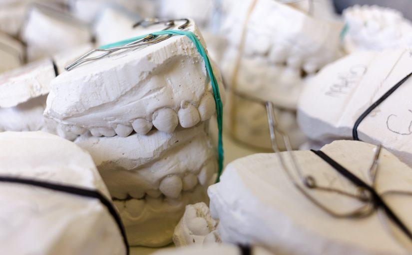 Złe postępowanie odżywiania się to większe braki w zębach oraz także ich utratę